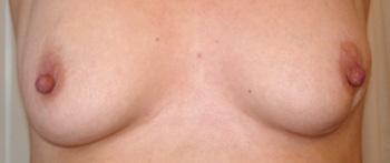tegn og symptomer pa Pagets sygdom i brystvorten.