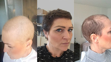 kemoterapi hårtab