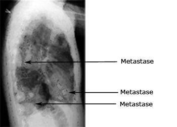 godartede pletter på lungerne