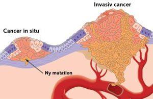 hvad er cancer