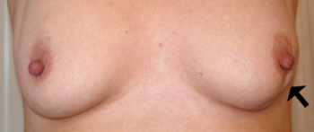 udslæt mellem brysterne