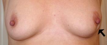 Hvordan føles en knude i brystet