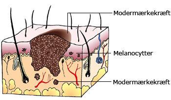 melanin i huden