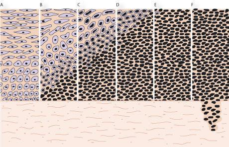 svære celleforandringer i livmoderhalsen
