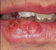 Årsager og symptomer - Kræftens Bekæmpelse