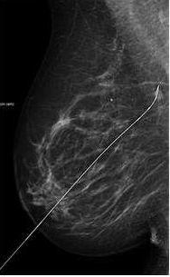 vandcyste i brystet