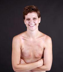 ung med brystkræft
