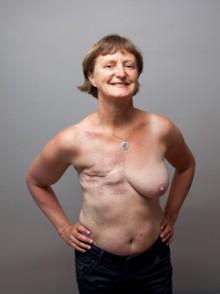 ømme bryster efter menstruation kvinder med brystkræft 3