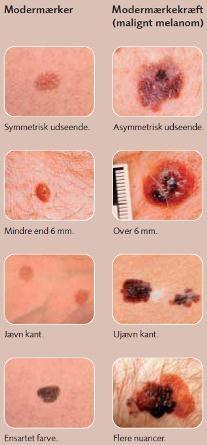 Brug ABCDE-reglen når du tjekker modermærker - Kræftens