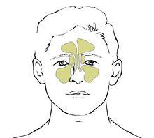 sygdomme i næsen