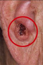 hudkløe kræft