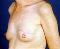 rekonstruktion af bryst