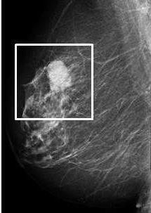 ultralydsscanning af bryst
