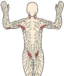 Lymfeknuder i nakken