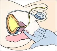 implantater før og efter røv med øre