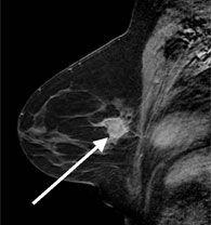 scanning af bryst