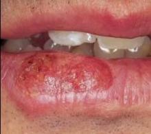 På forkølelsessår sår læben ikke Forkølelsessår (Herpes