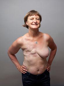1014e0d786c Fjernelse af hele brystet (mastektomi) - Kræftens Bekæmpelse
