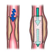 småcellet lungekræft stadie 4 overlevelse