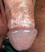 Penis talgknopper knopper på