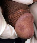Knopper på penis